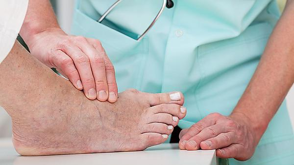 New research to help combat diabetic foot condition