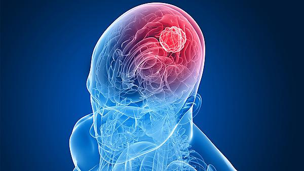 Brain tumour diagnosis has 'double' financial impact, report shows