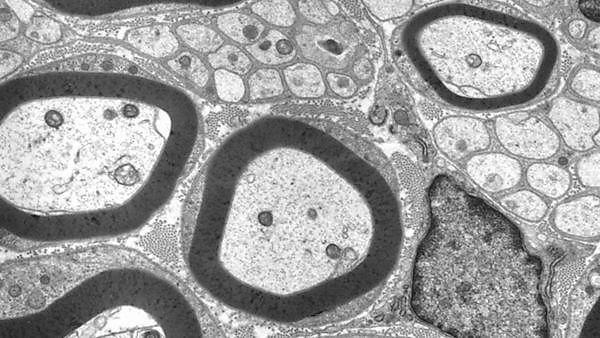 <p>  TEM showing (dark) Schwann cells surrounding axons<br></p>