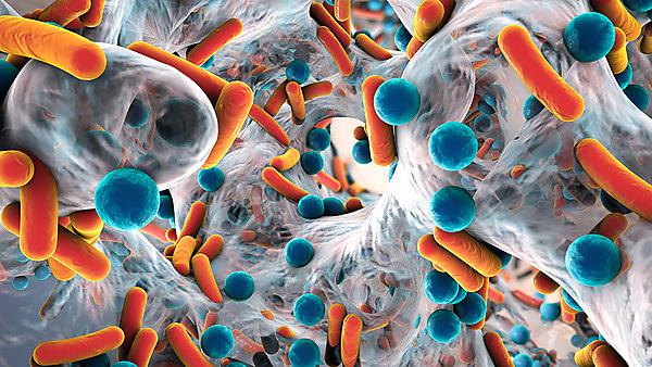 Antimicrobial Resistance: Rising to the challenge of a global health time bomb