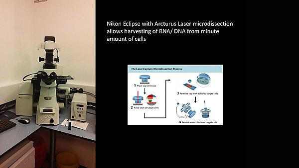 <p>           </p><p>Nikon Eclipse with Arcturus Laser microdissection&nbsp;allows harvesting of RNA/ DNA from minute&nbsp;amount of cells&nbsp;</p><p></p>