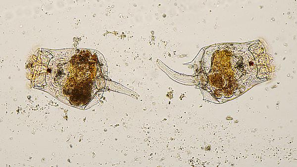 <p>Microscopic image of Rotifers, courtesy of Getty Images<br></p>
