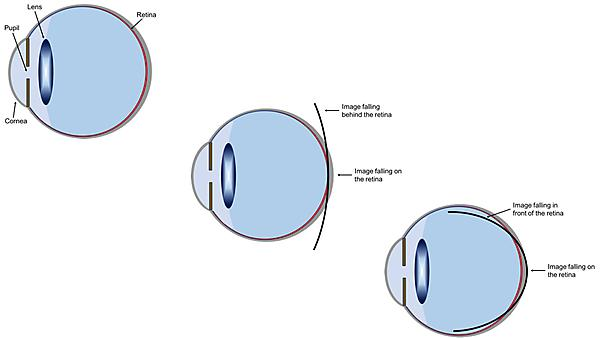 Mechanism involved in myopia development