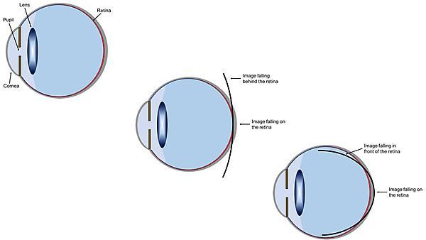 Mechanism involved in myopia development
