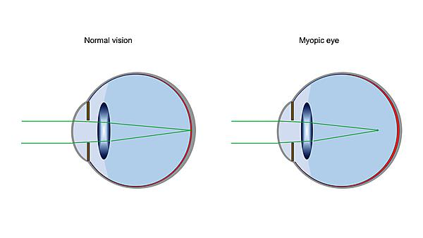 A diagram comparing normal vision and myopia