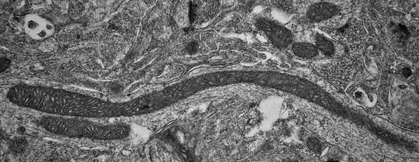 Mitochondria in Parkinson's Disease