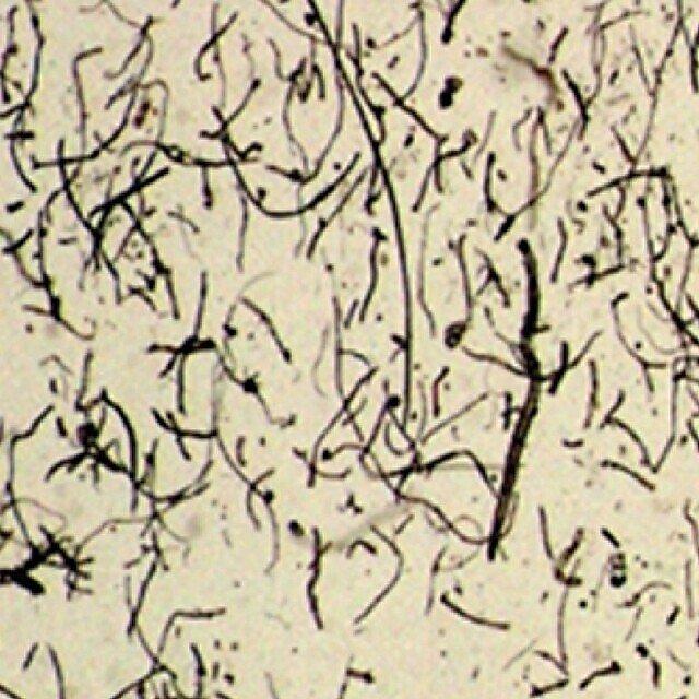 <p>Lint under the microscope</p>