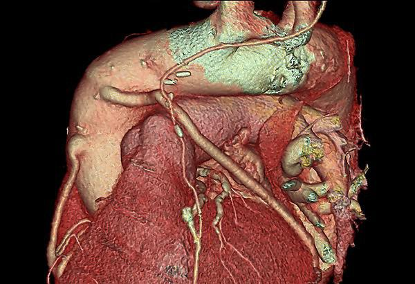 A cardiac CT scan of the heart